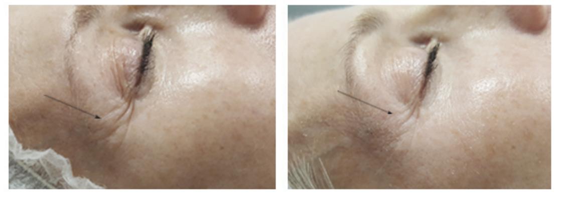 پاکسازی و لایهبرداری پوست با دستگاه جدید OxyGeneo