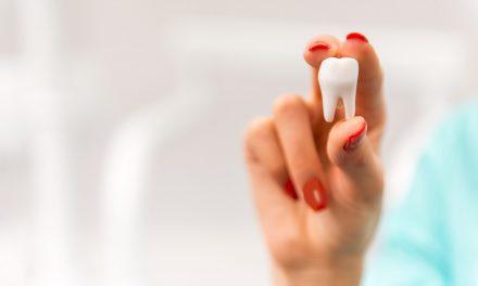 بهترین جراح دندان عقل در منطقه ریچموند هیل